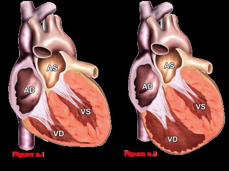 cuore-cardiomipatia